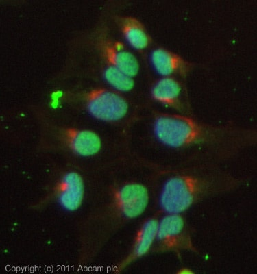 Immunocytochemistry/ Immunofluorescence - Anti-TIGAR antibody [M2 - P4H2] (ab64622)