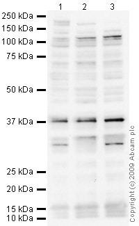 Western blot - Anti-TIGAR antibody [M2 - P4H2] (ab64622)