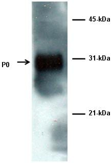 Western blot - Anti-Myelin Protein Zero antibody (ab64685)