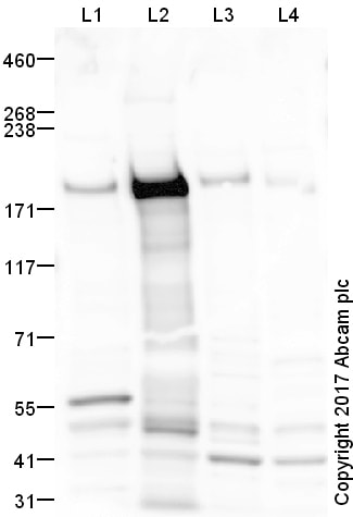 Western blot - Anti-Mannose Receptor antibody (ab64693)