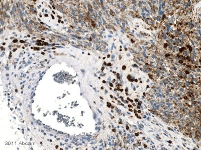Immunohistochemistry (Formalin/PFA-fixed paraffin-embedded sections) - Anti-CXCR3 antibody [49801] (ab64714)