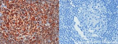 Immunohistochemistry (Formalin/PFA-fixed paraffin-embedded sections) - Anti-CD74 antibody (ab64772)