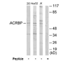 Western blot - Anti-ACRBP antibody (ab64809)