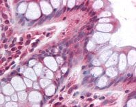 Immunohistochemistry (Formalin/PFA-fixed paraffin-embedded sections) - Anti-PDGFRL antibody (ab64899)