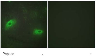 Immunocytochemistry/ Immunofluorescence - Anti-4-1BBL antibody (ab64912)