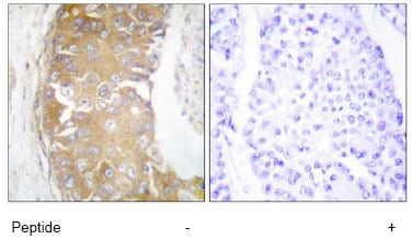 Immunohistochemistry (Formalin/PFA-fixed paraffin-embedded sections) - Anti-FRK antibody (ab64914)