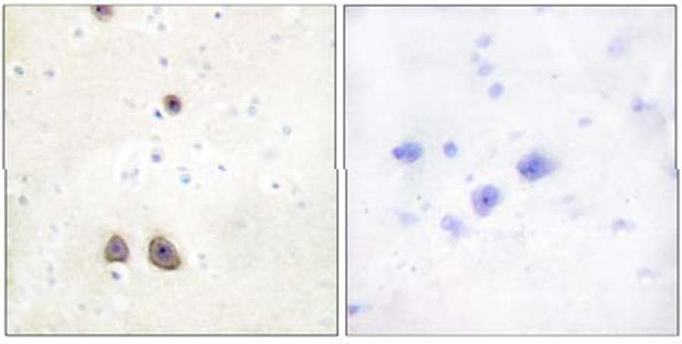 Immunohistochemistry (Formalin/PFA-fixed paraffin-embedded sections) - Anti-Renin Receptor antibody (ab64957)