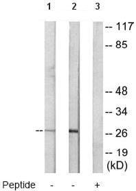 Western blot - Anti-CEBP Delta/CEBPD antibody (ab65081)
