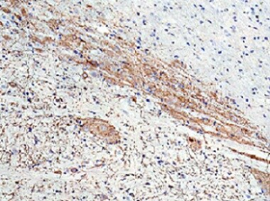Immunohistochemistry (Formalin/PFA-fixed paraffin-embedded sections) - Anti-GIRK2 antibody (ab65096)