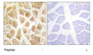Immunohistochemistry (Formalin/PFA-fixed paraffin-embedded sections) - Anti-SLK antibody (ab65113)
