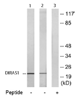 Western blot - Anti-DIRAS1 antibody - Carboxyterminal end (ab65139)