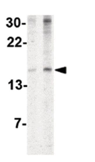 Western blot - Anti-IEX1/IER3 antibody (ab65152)