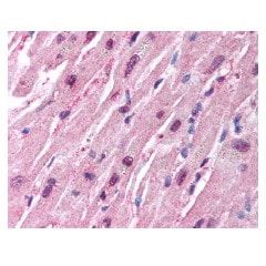 Immunohistochemistry (Formalin/PFA-fixed paraffin-embedded sections) - Anti-HUWE1/Mule antibody (ab65153)