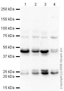 Western blot - Anti-Rab11A antibody (ab65200)