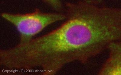 Immunocytochemistry/ Immunofluorescence - Anti-Vitamin D Binding protein antibody (ab65636)