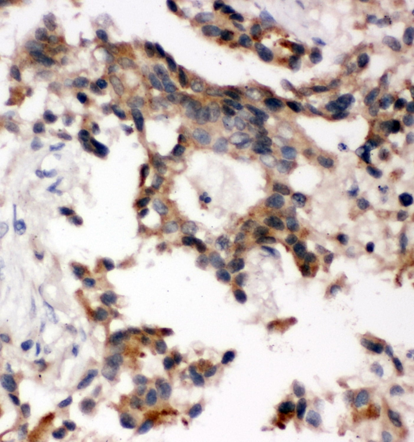 Immunohistochemistry (Formalin/PFA-fixed paraffin-embedded sections) - Anti-Abi-1 antibody (ab65828)