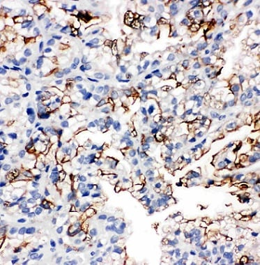 Immunohistochemistry (Formalin/PFA-fixed paraffin-embedded sections) - Anti-Aquaporin 1 antibody (ab65837)