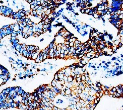 Immunohistochemistry (Formalin/PFA-fixed paraffin-embedded sections) - Anti-CCR5 antibody (ab65850)