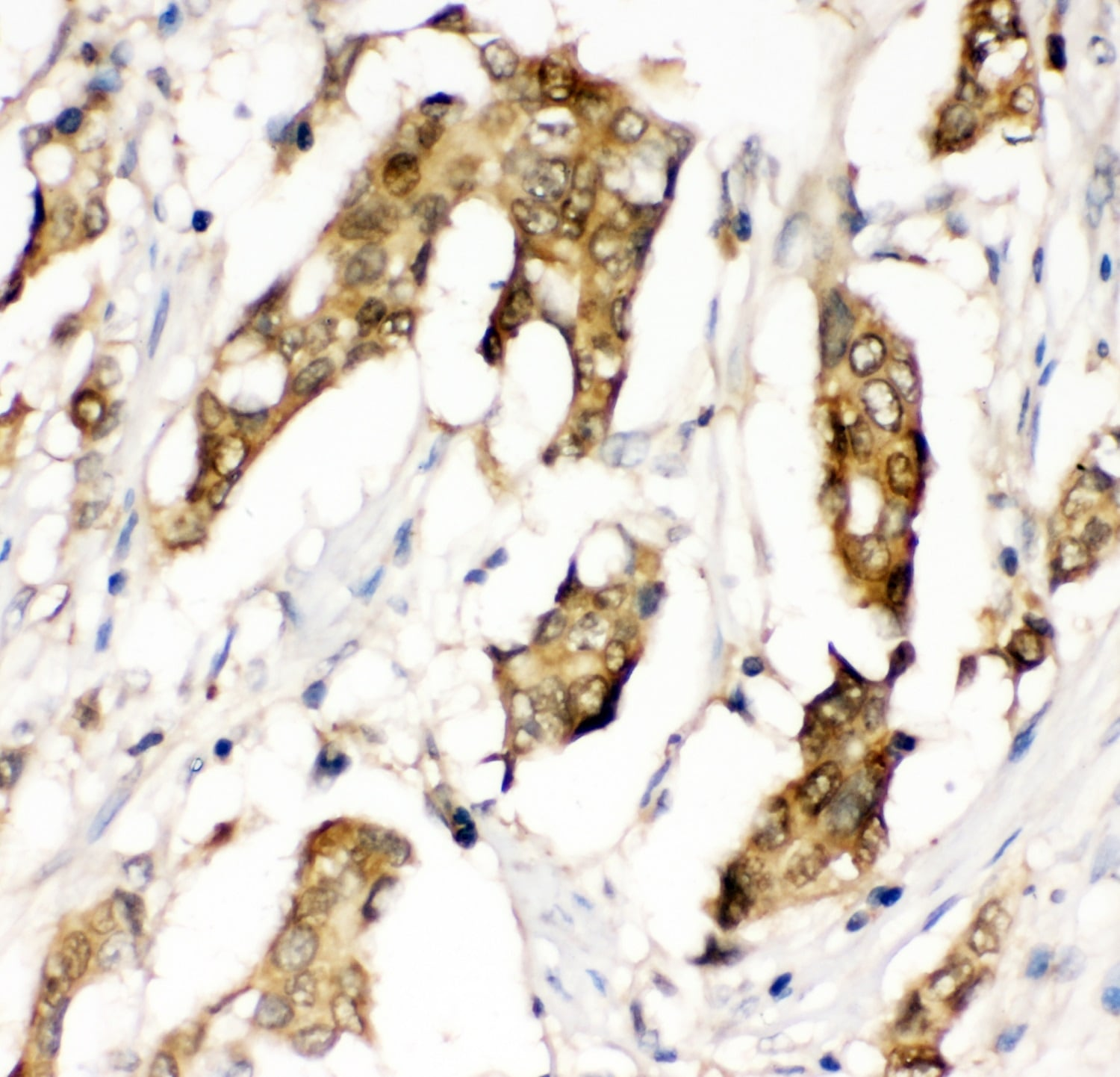 Immunohistochemistry (Formalin/PFA-fixed paraffin-embedded sections) - Anti-MIF antibody (ab65869)