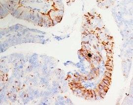 Immunohistochemistry (Formalin/PFA-fixed paraffin-embedded sections) - Anti-Morg1 antibody - Aminoterminal end (ab65870)