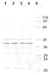 Western blot - Anti-HtrA3 antibody - Catalytic domain (ab65911)