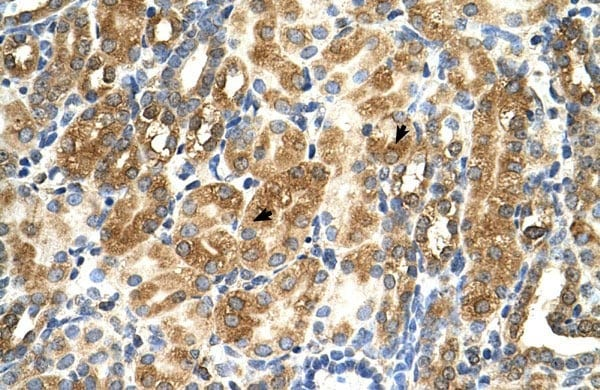 Immunohistochemistry (Formalin/PFA-fixed paraffin-embedded sections) - Anti-MAS1 antibody (ab66030)