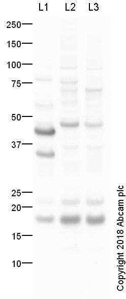 Western blot - Anti-Twist2 antibody (ab66031)