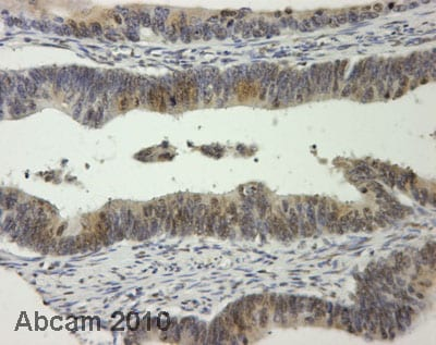 Immunohistochemistry (Formalin/PFA-fixed paraffin-embedded sections) - Anti-Ornithine Decarboxylase antibody (ab66067)
