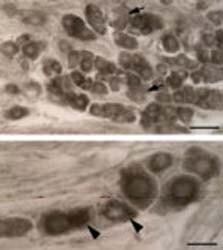 Immunocytochemistry/ Immunofluorescence - Anti-Neurotensin Receptor 1/NTSR1 antibody (ab66216)