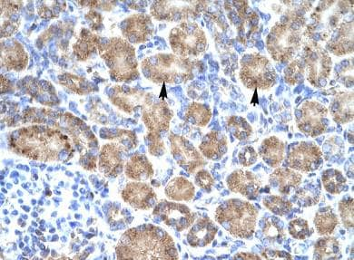 Immunohistochemistry (Formalin/PFA-fixed paraffin-embedded sections) - Anti-POU4F3 antibody (ab66260)