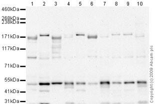 Western blot - Anti-ROCK2 antibody (ab66320)