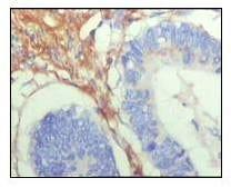 Immunohistochemistry (Formalin/PFA-fixed paraffin-embedded sections) - Anti-Fibulin 5 antibody [1G6A4] (ab66339)