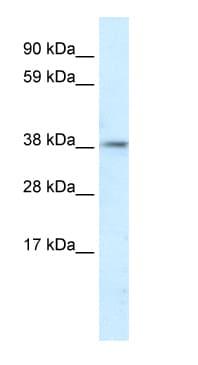 Western blot - Anti-PSMD11 antibody (ab66346)