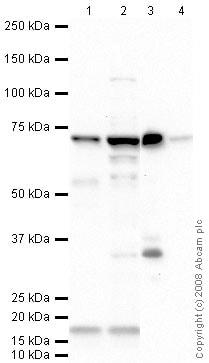 Western blot - Anti-SDHA antibody (ab66484)