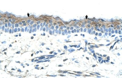Immunohistochemistry (Formalin/PFA-fixed paraffin-embedded sections) - Anti-MASPIN antibody (ab66513)