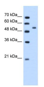 Western blot - Anti-Perilipin A+B antibody (ab66514)