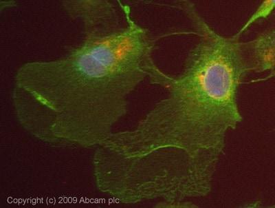 Immunocytochemistry/ Immunofluorescence - Anti-USP2 antibody (ab66556)