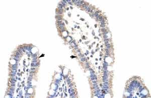 Immunohistochemistry (Formalin/PFA-fixed paraffin-embedded sections) - Anti-METTL3 antibody (ab66660)