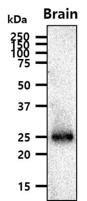 Western blot - Anti-Rab5 antibody [3A4] (ab66746)
