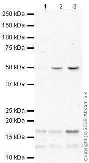 Western blot - Anti-p18 INK4c/CDKN2C antibody (ab66748)