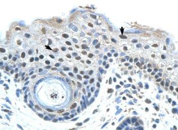 Immunohistochemistry (Formalin/PFA-fixed paraffin-embedded sections) - Anti-SAP155 antibody (ab66774)