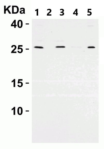 Western blot - Anti-ARMET/ARP antibody (ab67203)