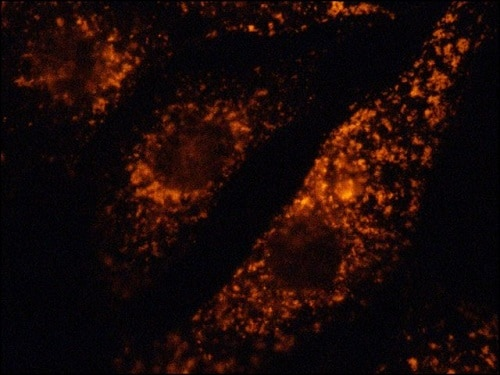 Immunocytochemistry/ Immunofluorescence - Anti-LAMP1 antibody (Cy3 ®) (ab67283)