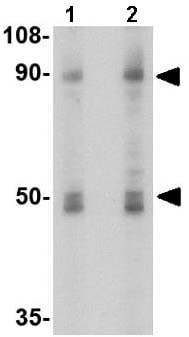 Western blot - Anti-Sodium/Hydrogen Exchanger 1/NHE-1 antibody (ab67314)