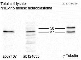 Western blot - Anti-Tropomodulin 2 antibody (ab67407)