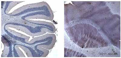 Immunohistochemistry (Formalin/PFA-fixed paraffin-embedded sections) - Anti-DIRAS2 antibody (ab67430)