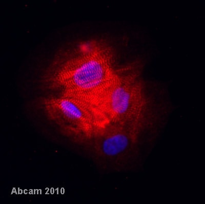 Immunocytochemistry/ Immunofluorescence - Anti-MYL7 antibody (ab68086)