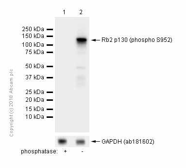 Western blot - Anti-Rb2 p130 (phospho S952) antibody [EP2387AY] (ab68136)