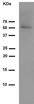 Western blot - Anti-NGF antibody [EP1318Y] (ab68151)