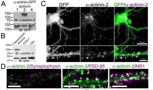 Immunofluorescence - Anti-Sarcomeric Alpha Actinin antibody [EP2529Y] (ab68167)